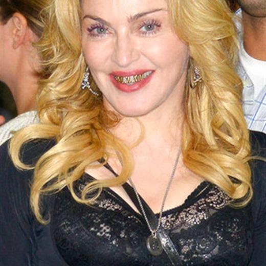 WTF! Madonna aparece con unos dientes dorados en su más reciente visita a Roma